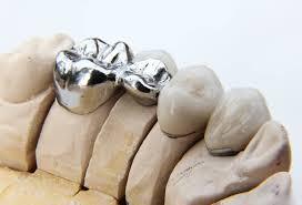 metal dental bridge