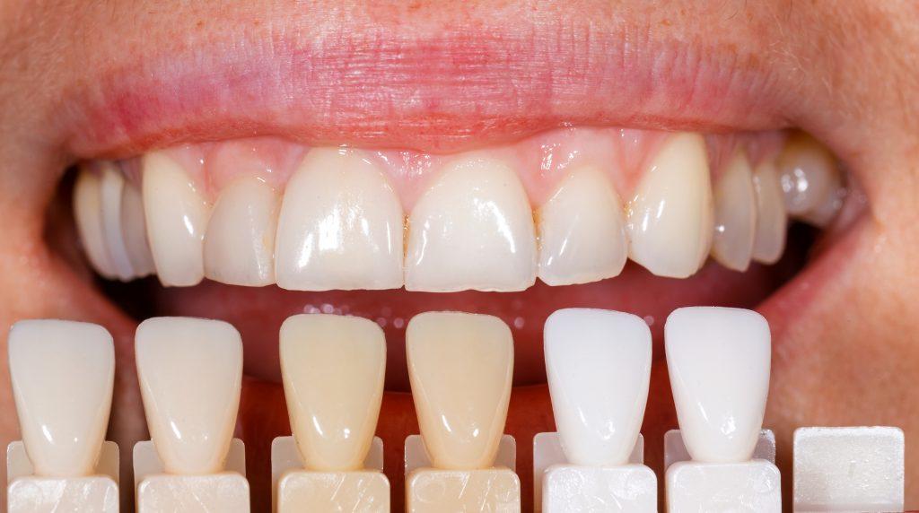 choosing color of dental veneers