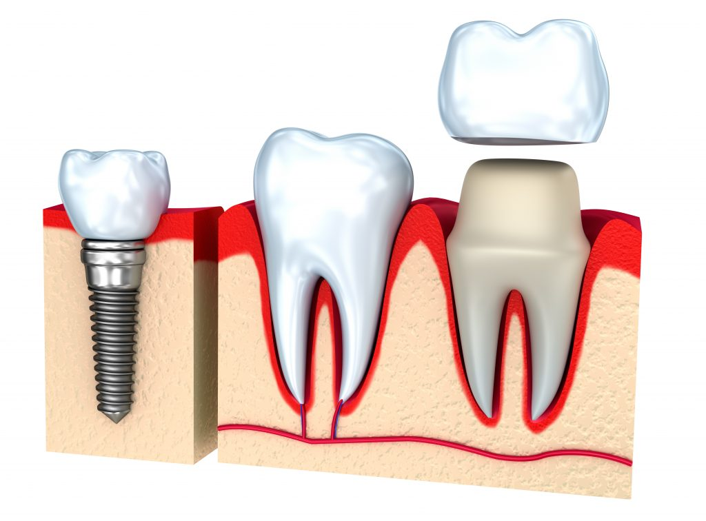 dental implant with crown placed in a gum