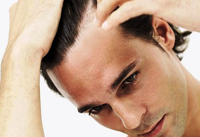 Deconsilior - Hair transplantation