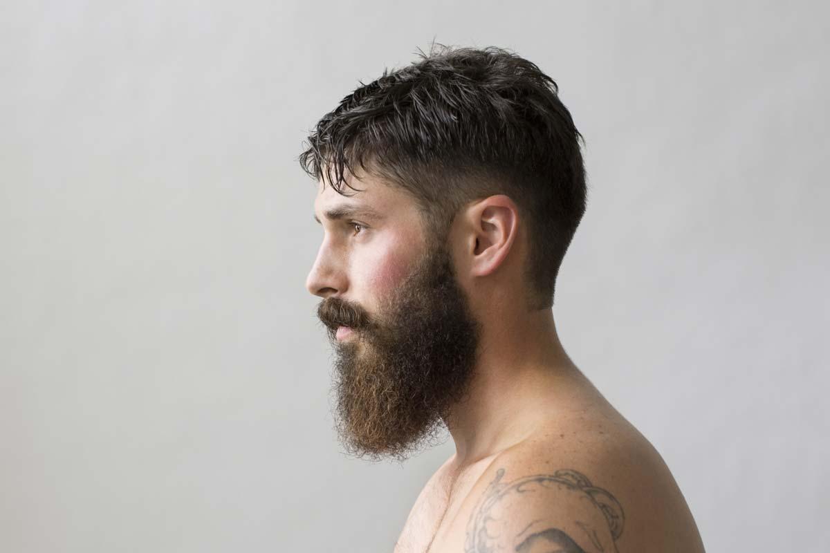 Turk Estetic & Hair Transplant - beard transplantation