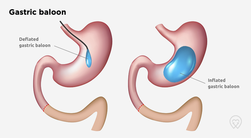 Clinic Hunter gastric balloon