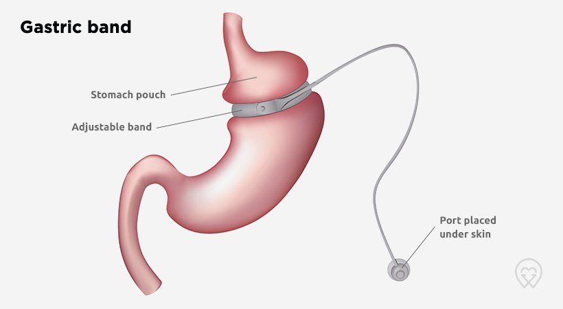 CH_gastric_band_820x450