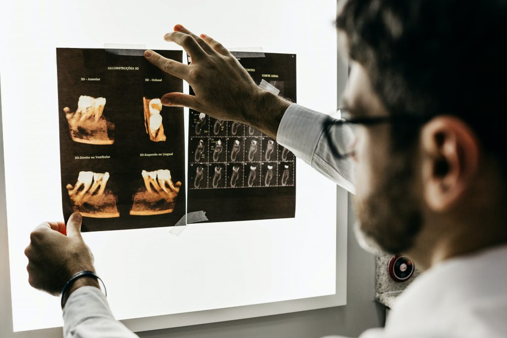 Dentist looking at x-ray