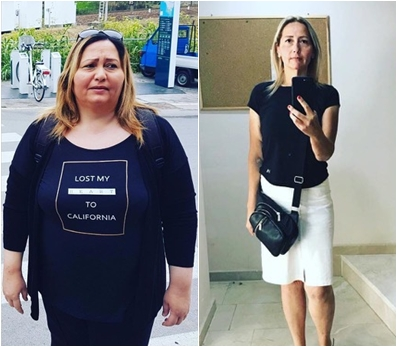 Gastric Sleeve Akdeniz Sifa before and after
