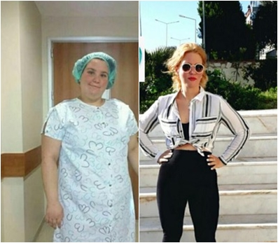 Gastric Sleeve 8 Akdeniz Sifa before and after