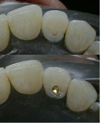 Gold filling in a tooth