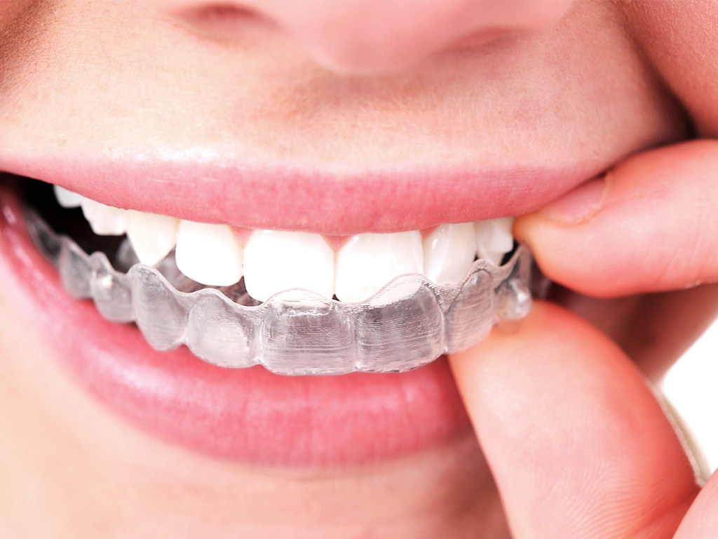 Invisagin braces