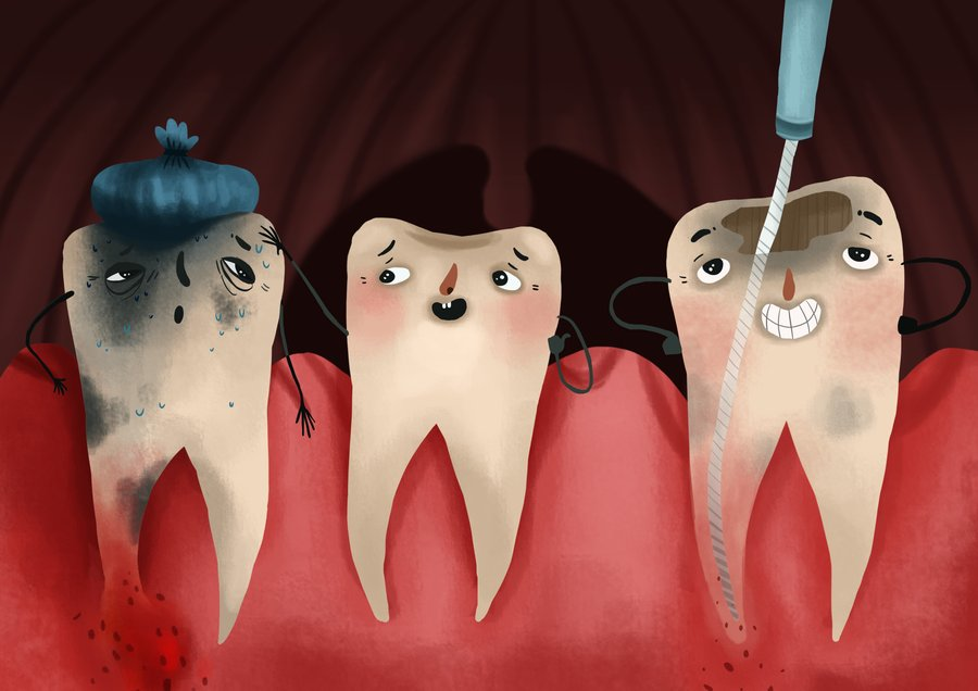 Teeth during the root canal treatment icon