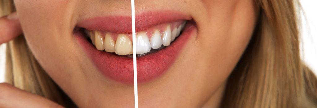 Teeth whitening effect
