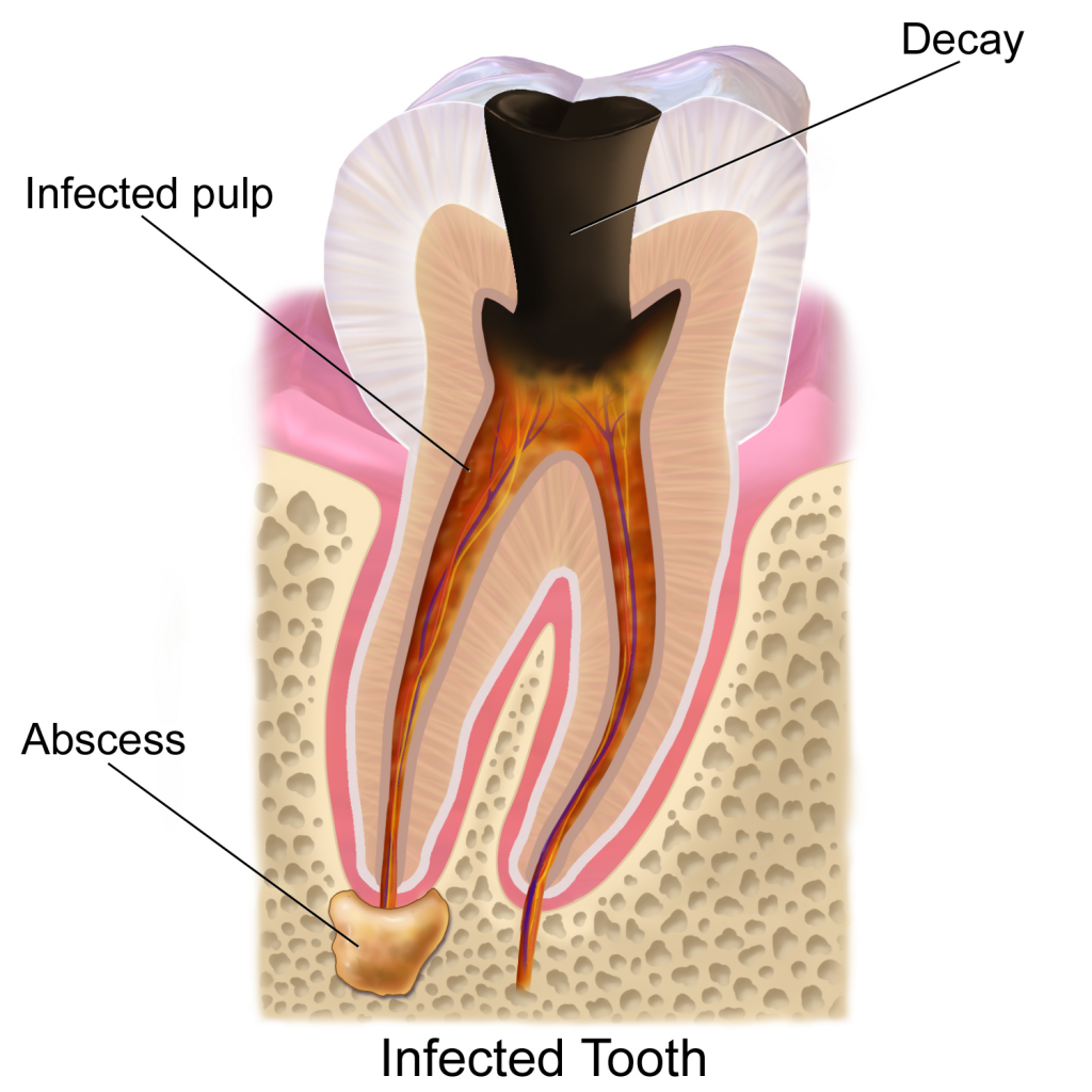Tooth Decay picture