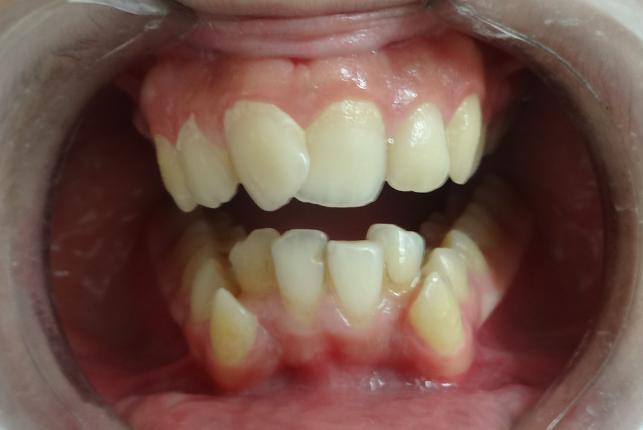 crowded teeth braces