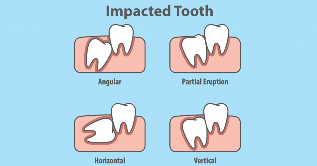 impacted-tooth examples
