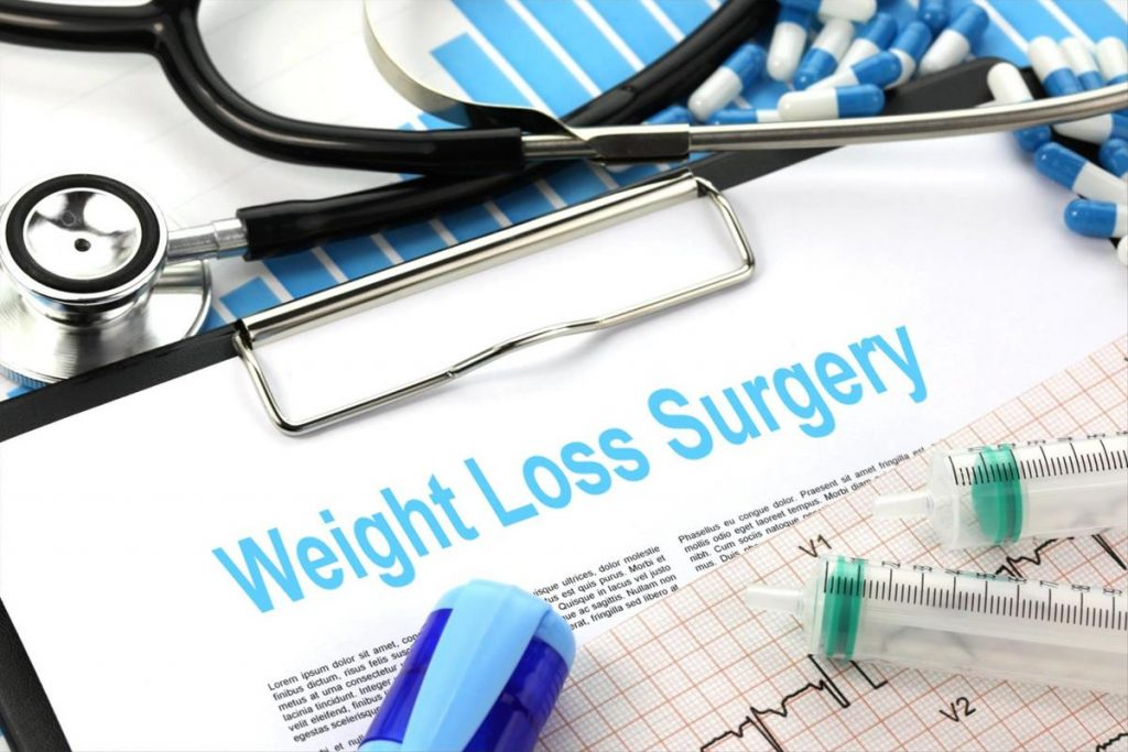 weight loss surgery sign